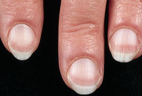 Bạn biết gì về móng tay tiết lộ về tình trạng sức khỏe?