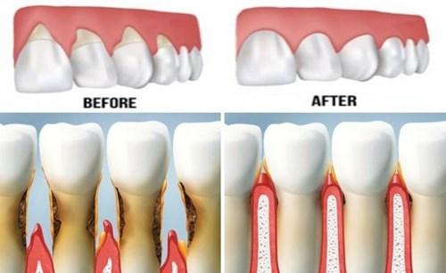 Bệnh về răng miệng nguy hiểm mà bạn cần phải biết