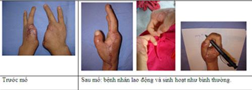Cuộc sống trở lại với cô gái sau ca mổ ghép ngón chân thành ngón tay cái