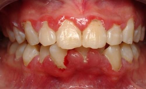 Đánh răng không đủ 2 lần/ngày sẽ khó thoát 10 bệnh này ?