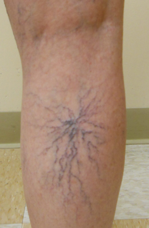 Tại sao phụ nữ dễ bị suy giãn tĩnh mạch ở chân