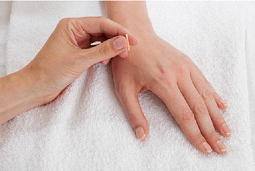 Tổng hợp các phương pháp điều trị đau nửa đầu