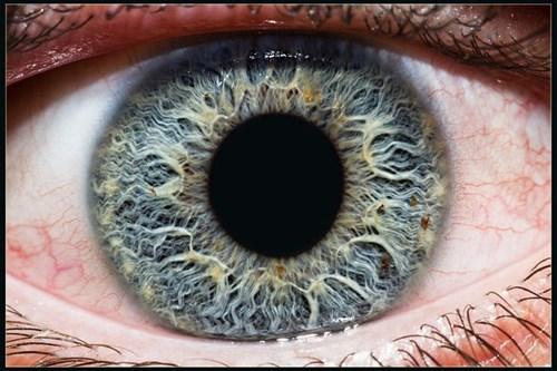 Bạn biết gì về ý nghĩa của chấm đen trên mống mắt ?