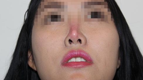 Cách tránh rủi ro khi phẫu thuật nâng mũi