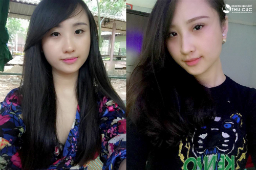 Cô gái 9X 'lột xác' nhờ phẫu thuật thẩm mỹ