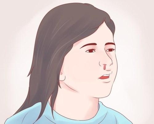 Khi bị chảy máu cam thì nên cúi đầu xuống hay ngửa đầu ra?