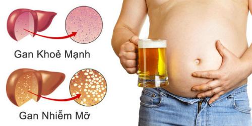4 loại thực phẩm phá hủy gan bạn nên tránh xa
