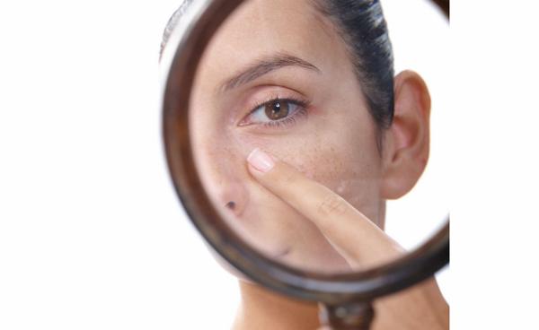 Những lầm tưởng về nguyên nhân gây nám da