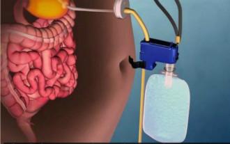 Máy hút thức ăn ra khỏi dạ dày để giảm cân