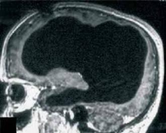Người đàn ông sống khỏe dù mất 90% não khiến y học bối rối